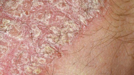 Skin Cancer Acne Skin Injury Dermatology News Treatment Studies