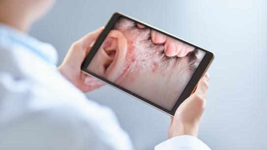 A doctor looking at a psoriasis photo on a tablet