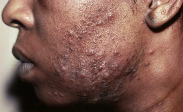 Pustular acne on man's face
