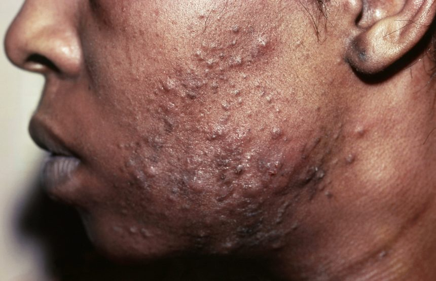 Pustular acne on man's face
