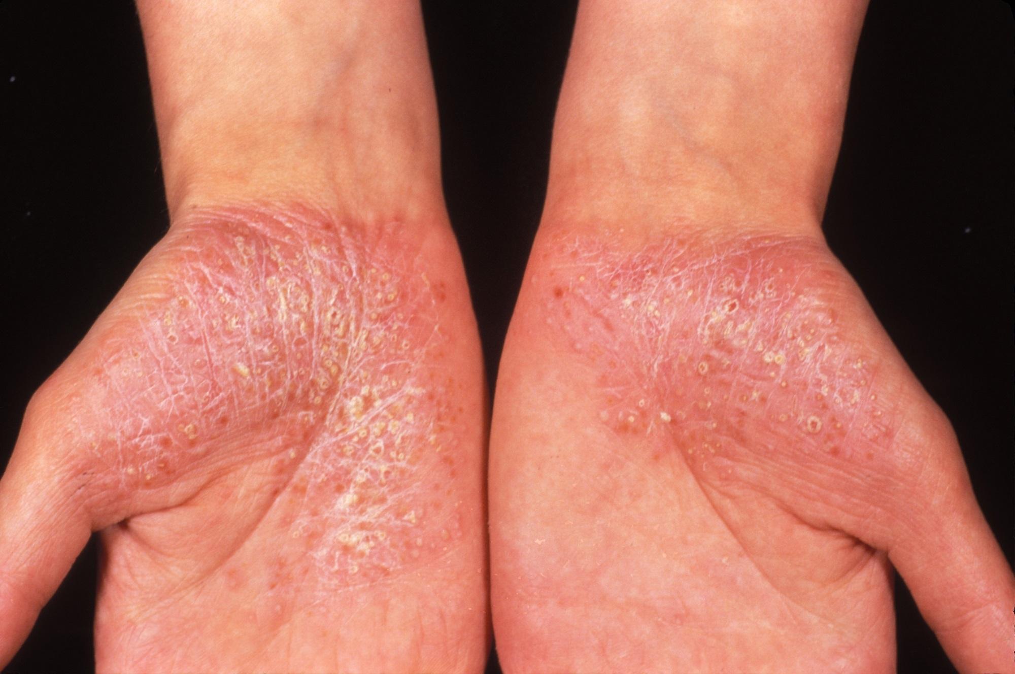 Palmoplantar psoriasis fórum kezelése