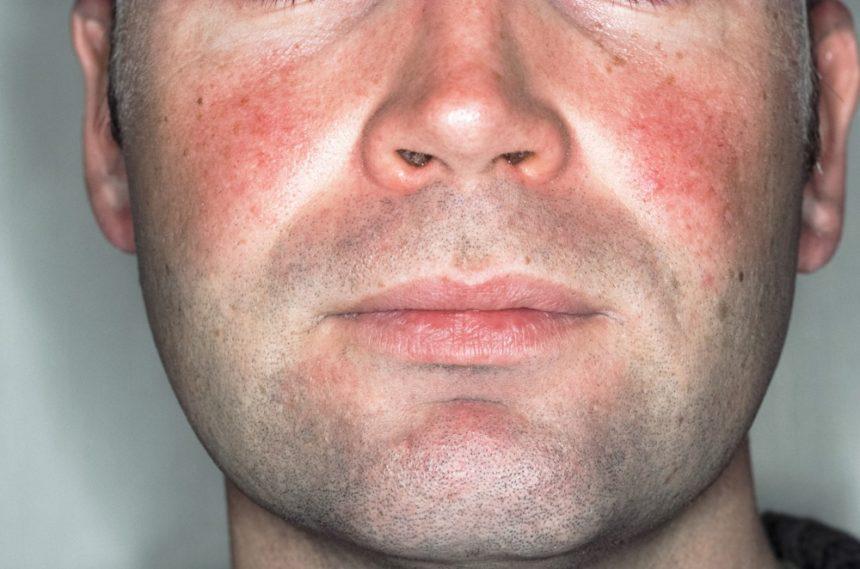 rosacea acne rosacea