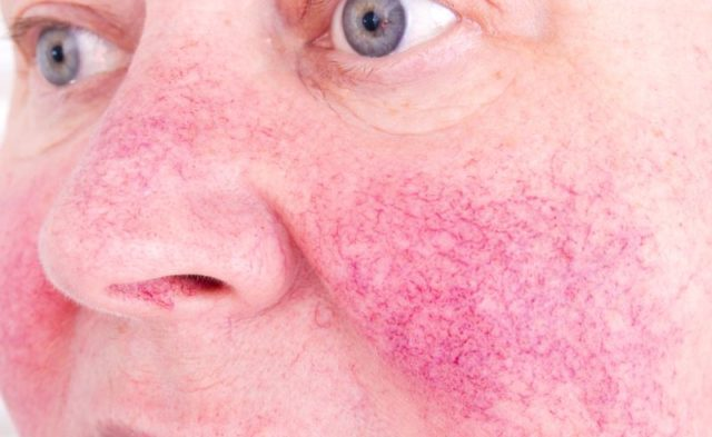 An older woman with a flare-up of rosacea on her cheeks