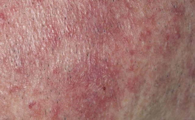 Rosacea on face