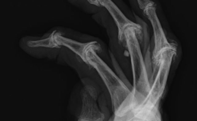 x-ray of psoriatic arthritis