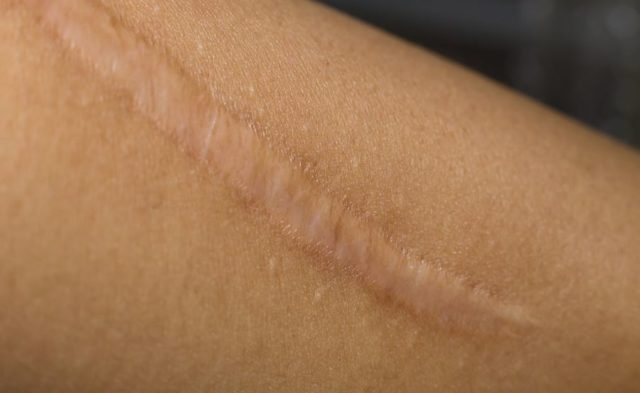 A keloid scar on a person's arm