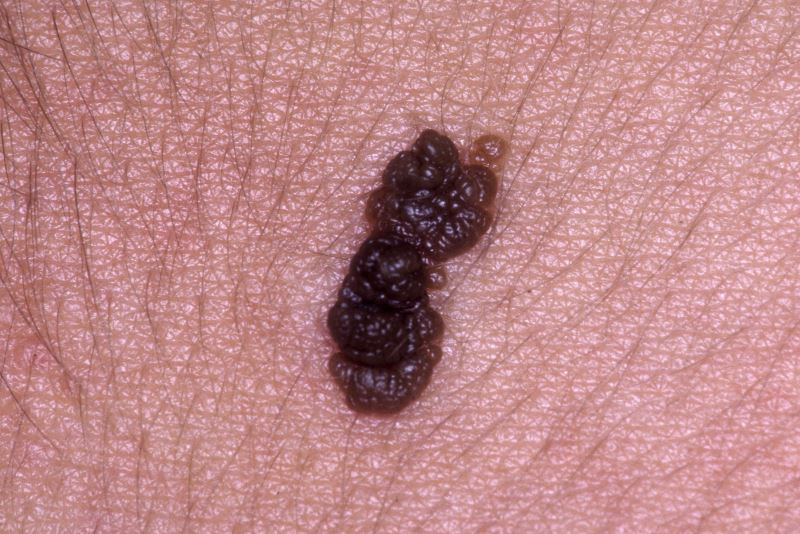 Close-up of a seborrheic keratosis.