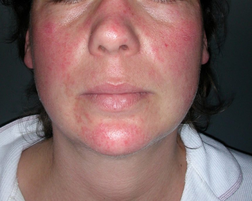 Skin Manifestations Of Thyroid Disorders A Review Dermatology