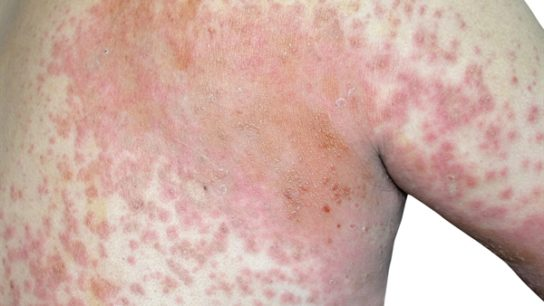 Atopic dermatitis is a serious condition that has been reported to affect between 30% and 50% of people who are HIV positive vs ≤20% of those who are HIV negative.2 The condition has been associated with elevated immunoglobulin E levels, eosinophilia, and possible Th1-Th2 imbalances.2,12 Because nearly all patients with AIDS demonstrate Th1-Th2 imbalances, they are at particularly high risk for atopic dermatitis.2 Patients generally present with chronic, red, thick, lichenified plaques and severe, incessant pruritus that can have an impact on daily function and sleep and reduce quality of life significantly.13 Isolated pruritic papules are sometimes observed. The hands, face, and eyelids, and areas of the body with large skin folds are most often affected; however, inflammatory flare-ups can affect the entire body and might necessitate hospitalization.13