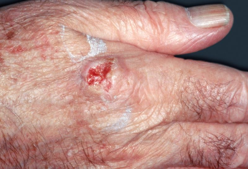 Squamous cell carcinoma on the knuckle.