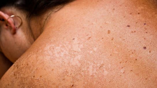 girl's sunburned back