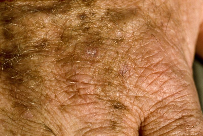 Close-up of skin cancer and age spots on the hand