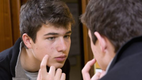 A teenage boy inspecting his acne