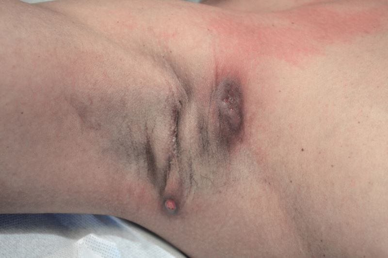 Verneuil's disease, or Hidrosadenitis suppurativa on the left armpit