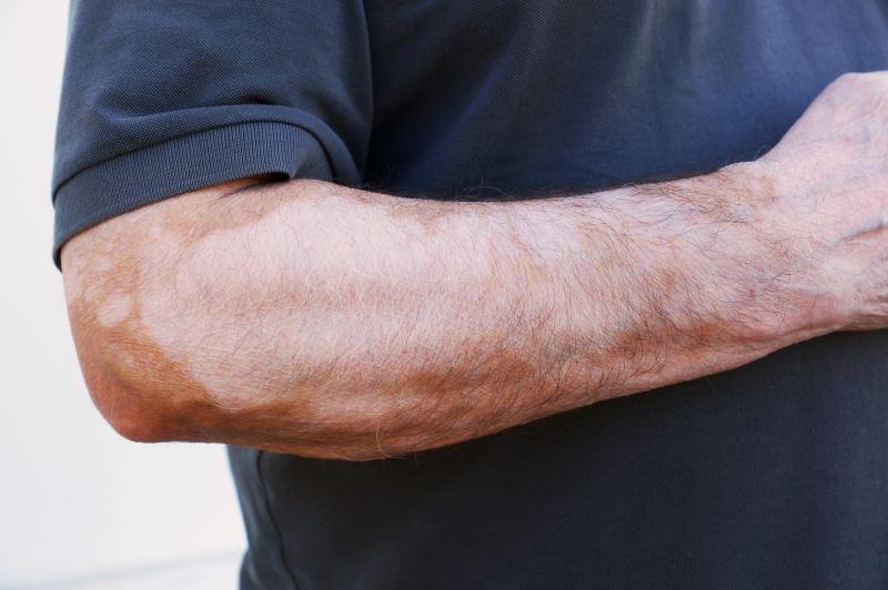 Vitiligo on a man's arm