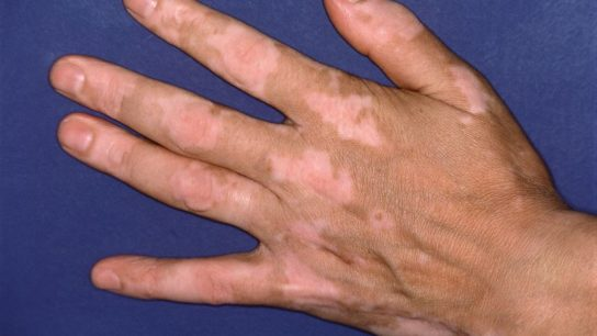 Hand of an individual with vitiligo