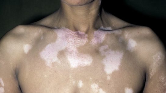 Vitiligo on chest