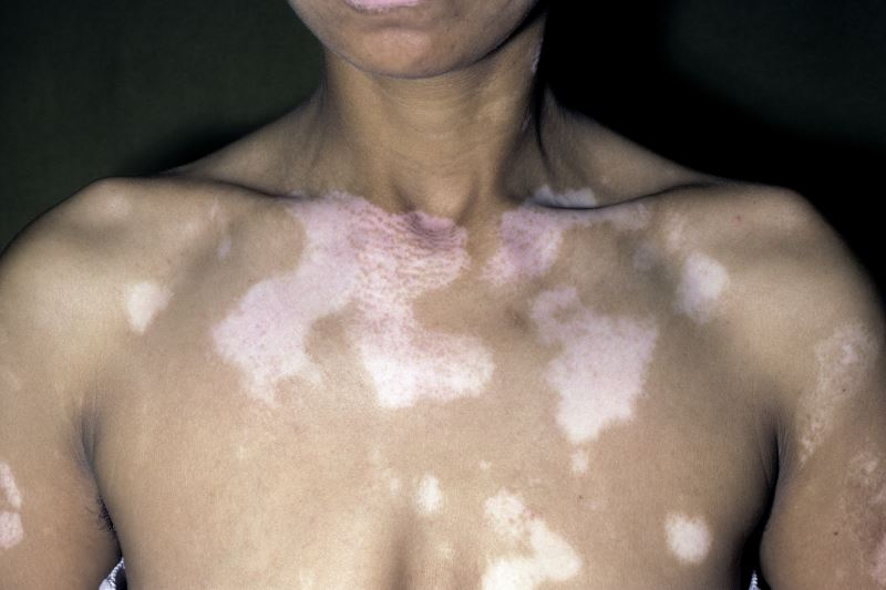 Refractory Vitiligo Has Good Repigmentation With Follicular Plus Epidermal Cell Suspension Dermatology Advisor