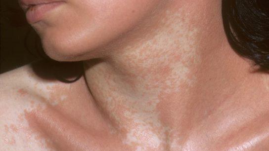 Vitiligo on chest