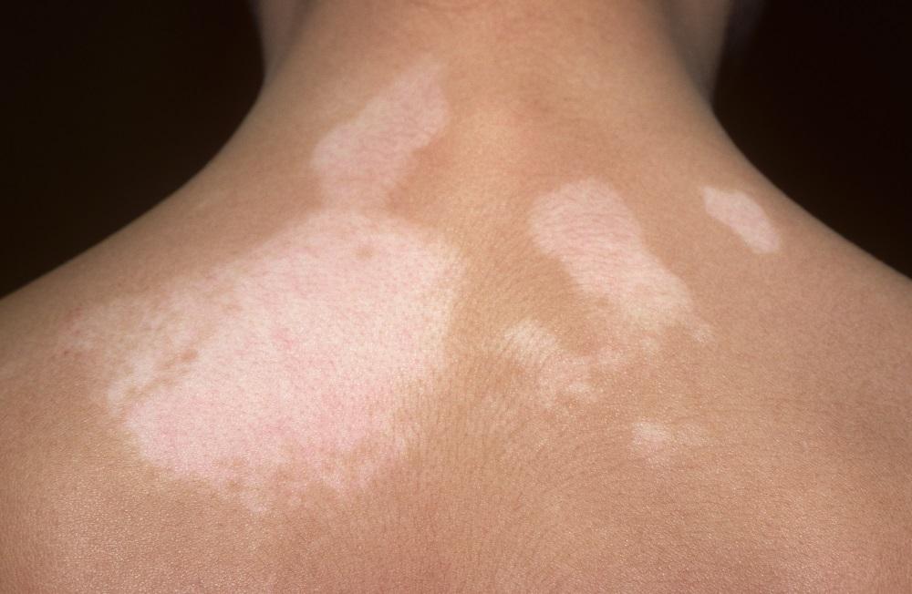 Microneedling Combined With Topical 5 Fluorouracil More Effective Vitiligo Treatment Than Microneedling Alone Dermatology Advisor
