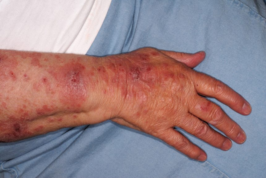 Dermatitis herpetiformis (DH) is the best characterized and most common cutaneous manifestation of CD.2,3 Genetic studies have shown both CD and DH to be strongly associated with human leukocyte antigen (HLA)-DQ2 and HLA-DQ8, with 86% of all patients with CD and DH being positive for HLA-DQ2 and most of the remainder being positive for HLA-DQ8.4 Patients typically have symmetrically distributed itchy papules and vesicles on their elbows, knees, and buttocks, but the upper back, abdomen, scalp, and face can also be affected.3 Rarely, oral lesions and/or purpuric lesions on the hands and feet may be observed. Overt GI symptoms are uncommon, despite 75% of patients with DH having distorted villous architecture.3 A gluten-free diet is the gold-standard treatment, regardless of whether there is villous atrophy. Patients who follow a strict gluten-free diet have an excellent long-term prognosis, with an overall mortality rate lower than that of the general population.3