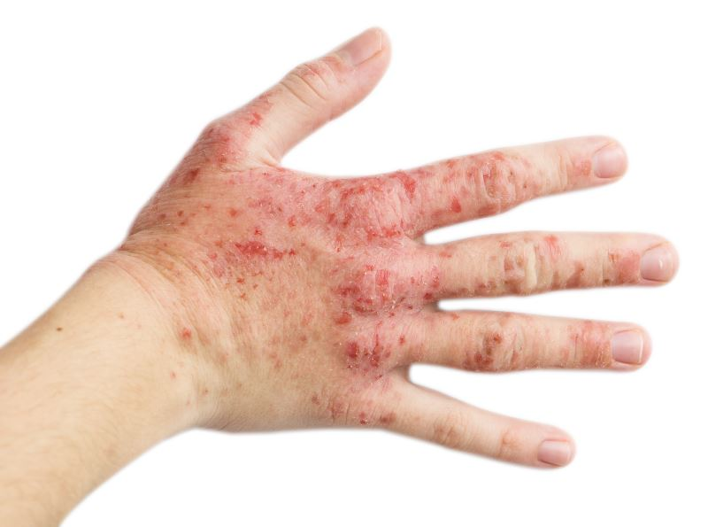 Eczema on a woman's hand