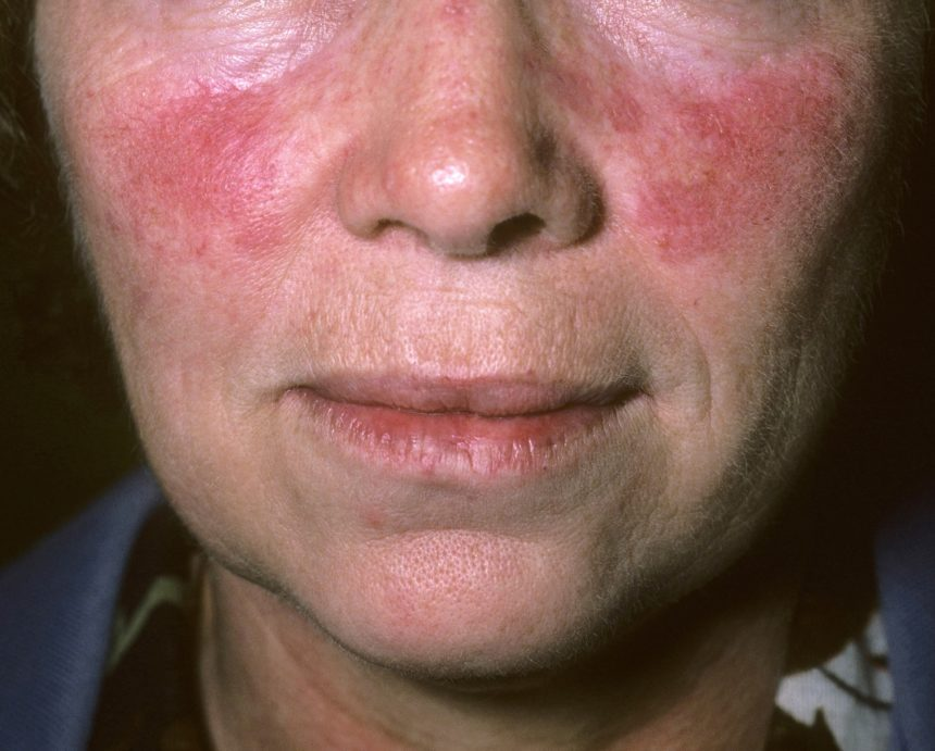 Rosacea has been reported to share genetic risk loci with CD and other autoimmune disorders.10 Several studies have shown a higher prevalence of CD among individuals with rosacea, although the correlation appears strongest in women, with one large Danish population-based control study reporting an odds ratio of 2.03 (95% CI, 1.35-3.07) in women and the association not reaching statistical significance in men.2,11 The study did not examine rosacea subtypes; thus, it is unclear whether the risk spans all subtypes. Nevertheless, based on their data, the Danish investigators suggested there may be benefit to asking patients with rosacea about their personal and family history of autoimmune diseases and potentially screening them for CD.11