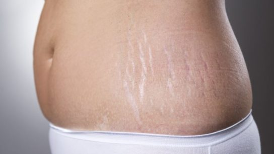 Stretch marks on a woman's hip