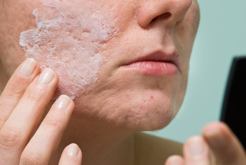 topical treatment