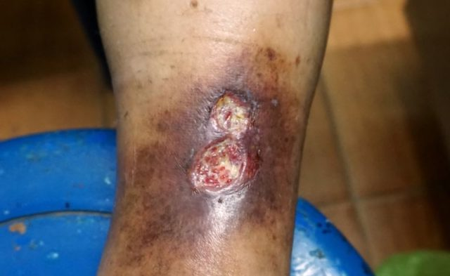 An ulcer on a man's leg.