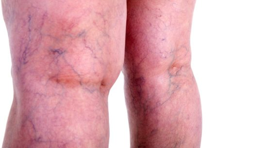 Varicose on legs