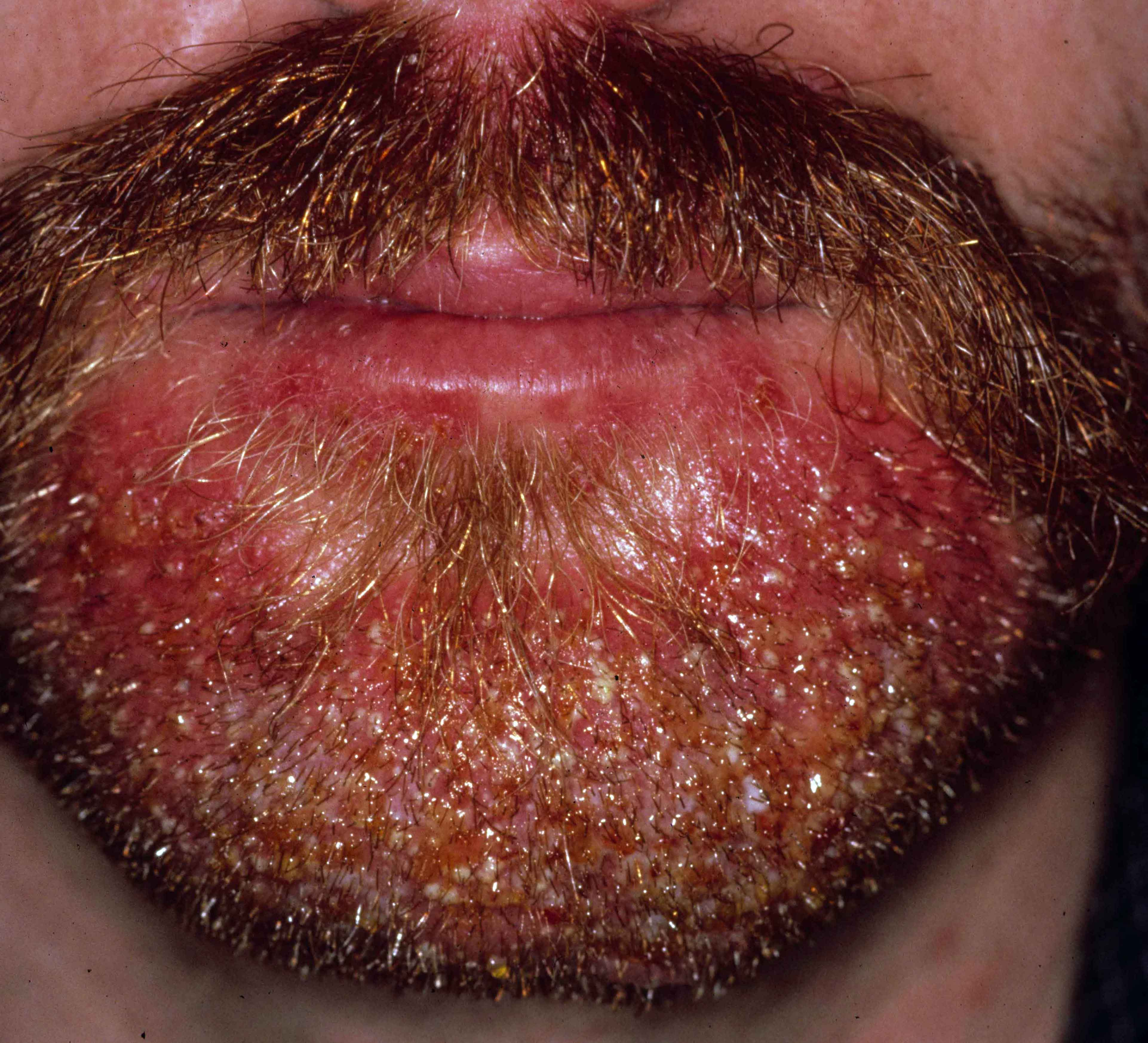 Folliculitis, Acute Bacterial [Bockhart's Impetigo, Superficial