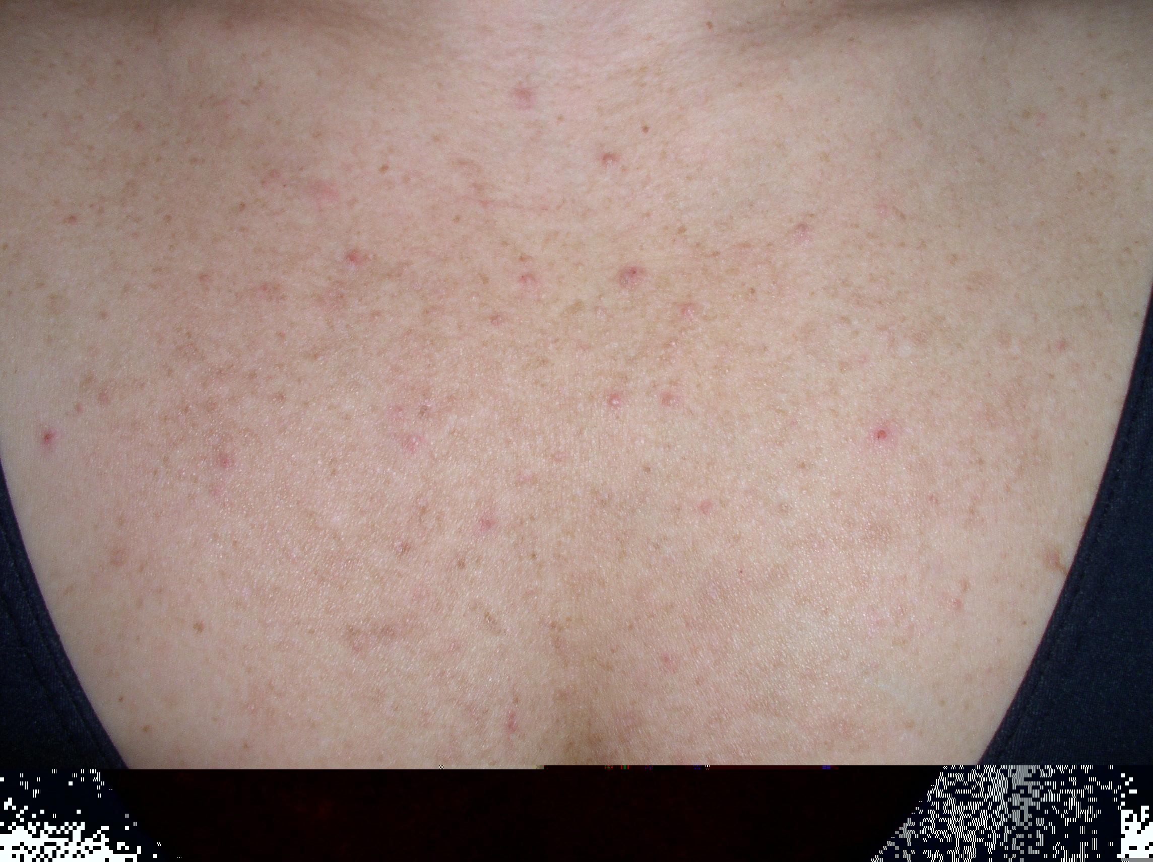 Folliculitis, Pityrosporum (Malassezia Folliculitis) - Dermatology