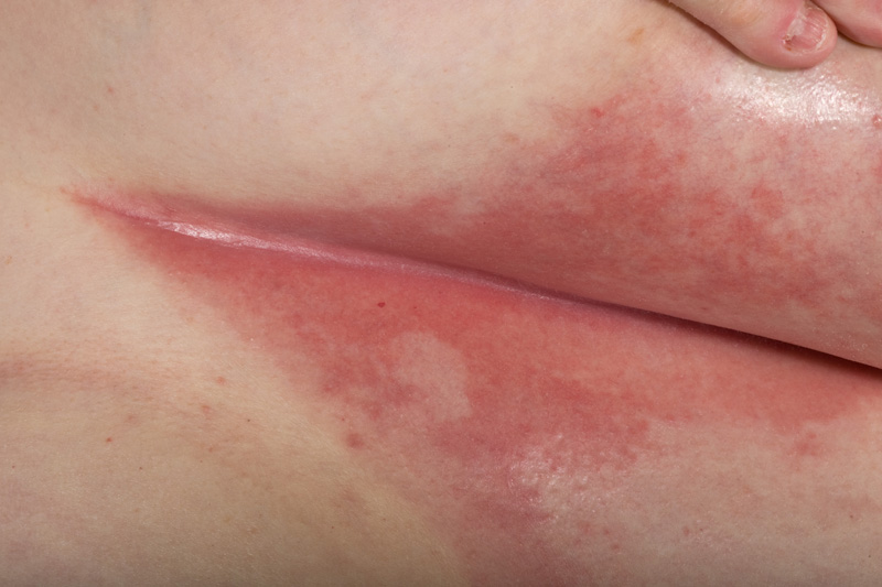 Intertrigo (Intertrigo Candidiasis) - Dermatology Advisor