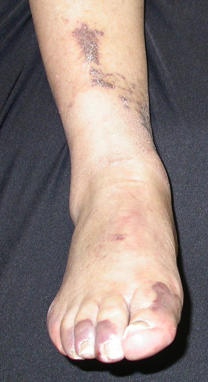 Kaposi's Sarcoma (KS) - Dermatology Advisor