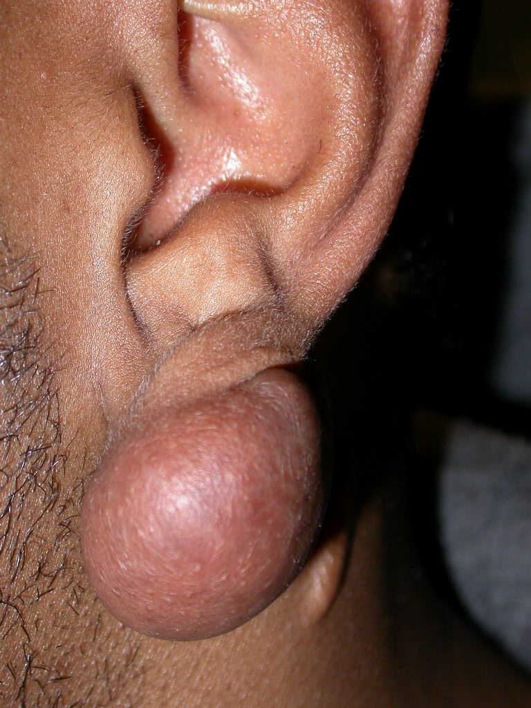 Keloids and Hypertophic Scars (Keloid and Hypertrophic Scars
