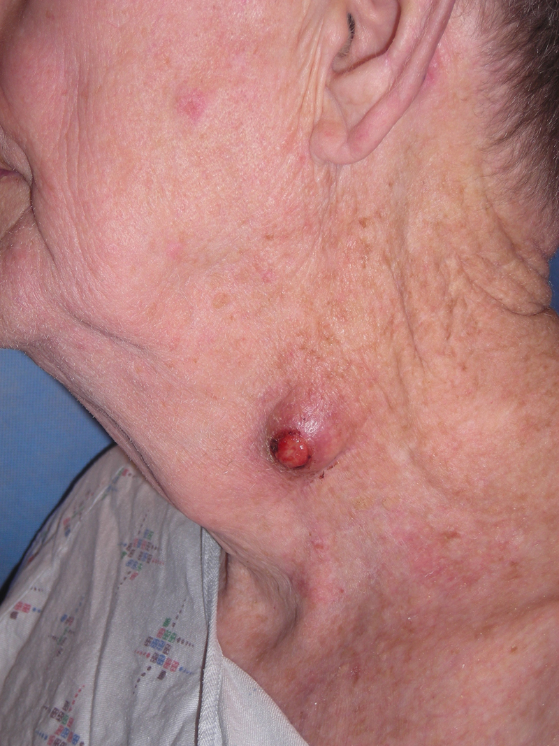 Keratin Granuloma (inflamed or ruptured cyst, inflamed or ruptured