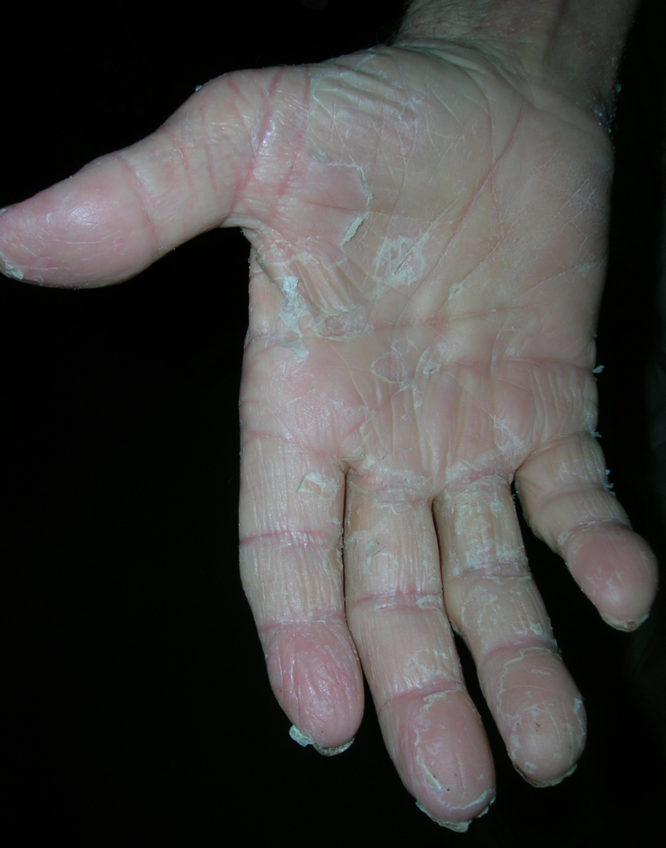 exfoliatív dermatitis)