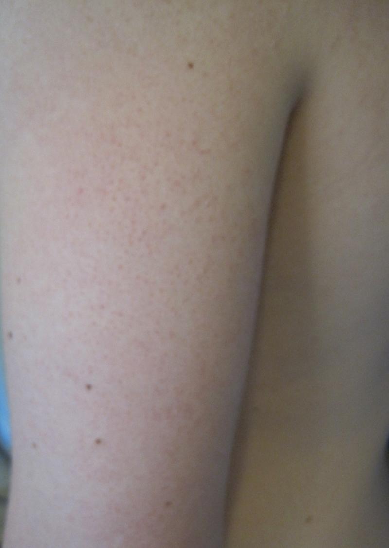 Keratosis Pilaris and Variants - Dermatology Advisor