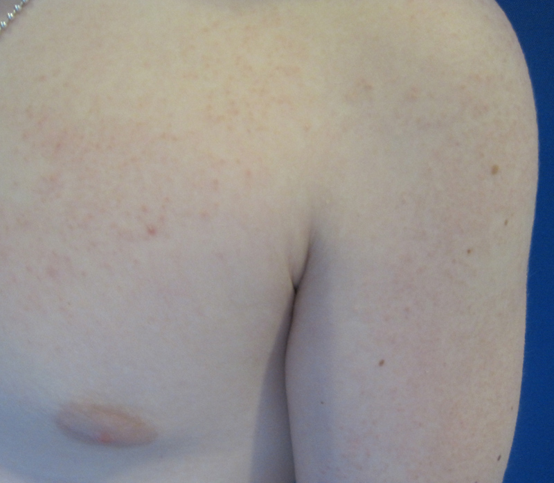 Keratosis Pilaris and Variants - Dermatology Advisor