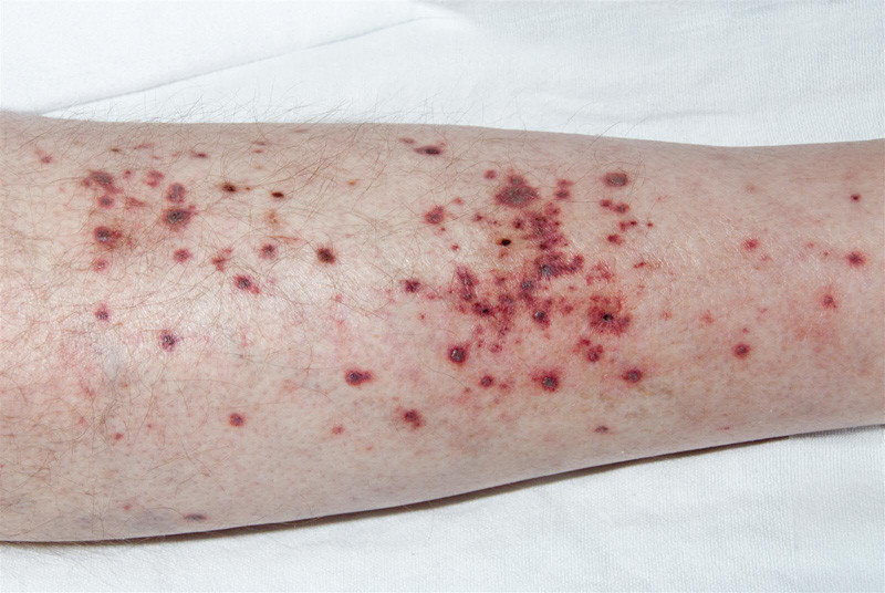 Leukocytoclastic Vasculitis (Allergic vasculitis