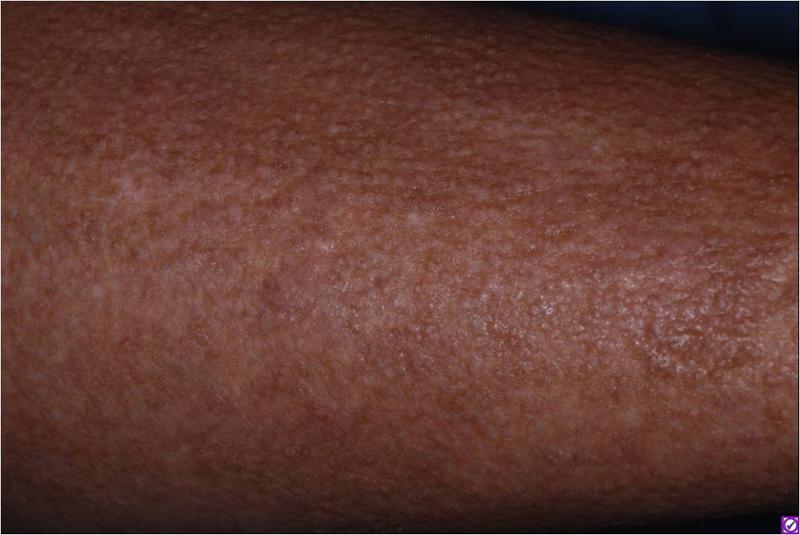 Lichen Amyloidosis (Lichen Amyloidosus, Papular Amyloidosis