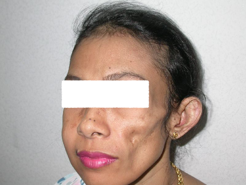 Lupus (profundus) Panniculitis (Lupus Erythematosus