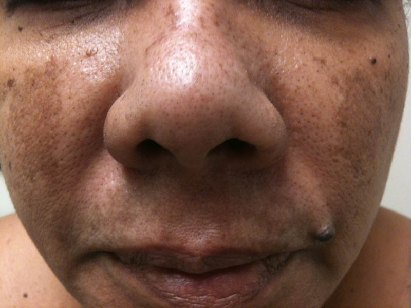 Melasma Cholasma Faciei Mask Of Pregnancy Dermatology