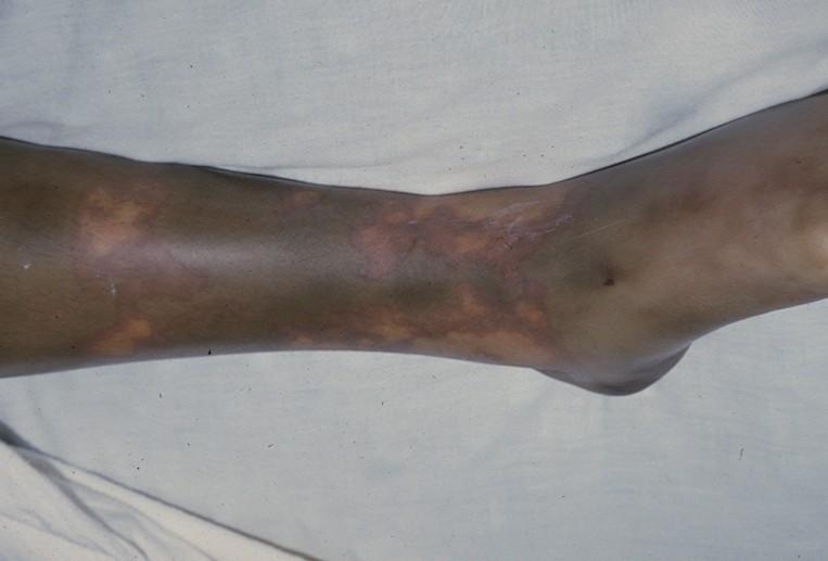 Meningiococcemia (Menningococcemia (Menningiococcemia