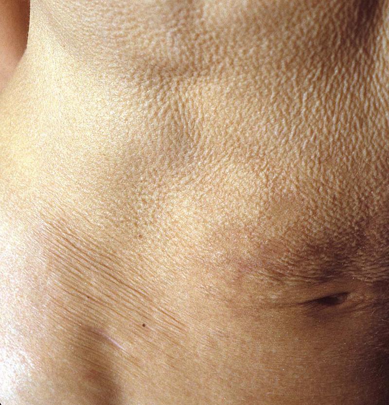 Mid-Dermal Elastolysis (middermal elastolysis, elastolysis