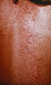 Infectious Mononucleosis (Mononucleosis, Mono, EBV (Epstein