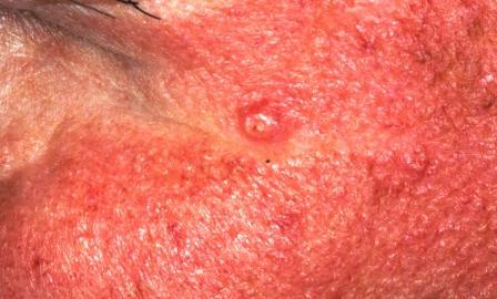 Fox-Fordyce Disease (Apocrine Miliaria) - Dermatology Advisor