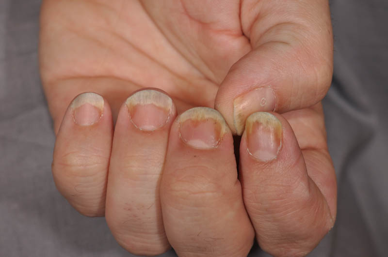 tazarotene nail psoriasis