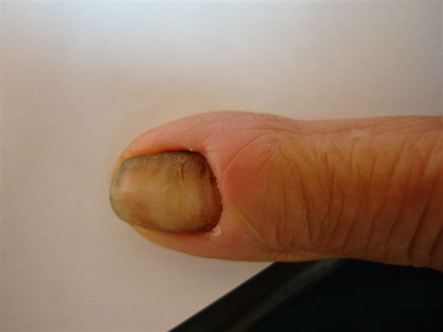 Paronychia: acute and chronic (nail disease, felon/whitlow